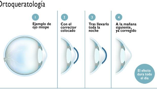 ortoqueratologia-MADRID